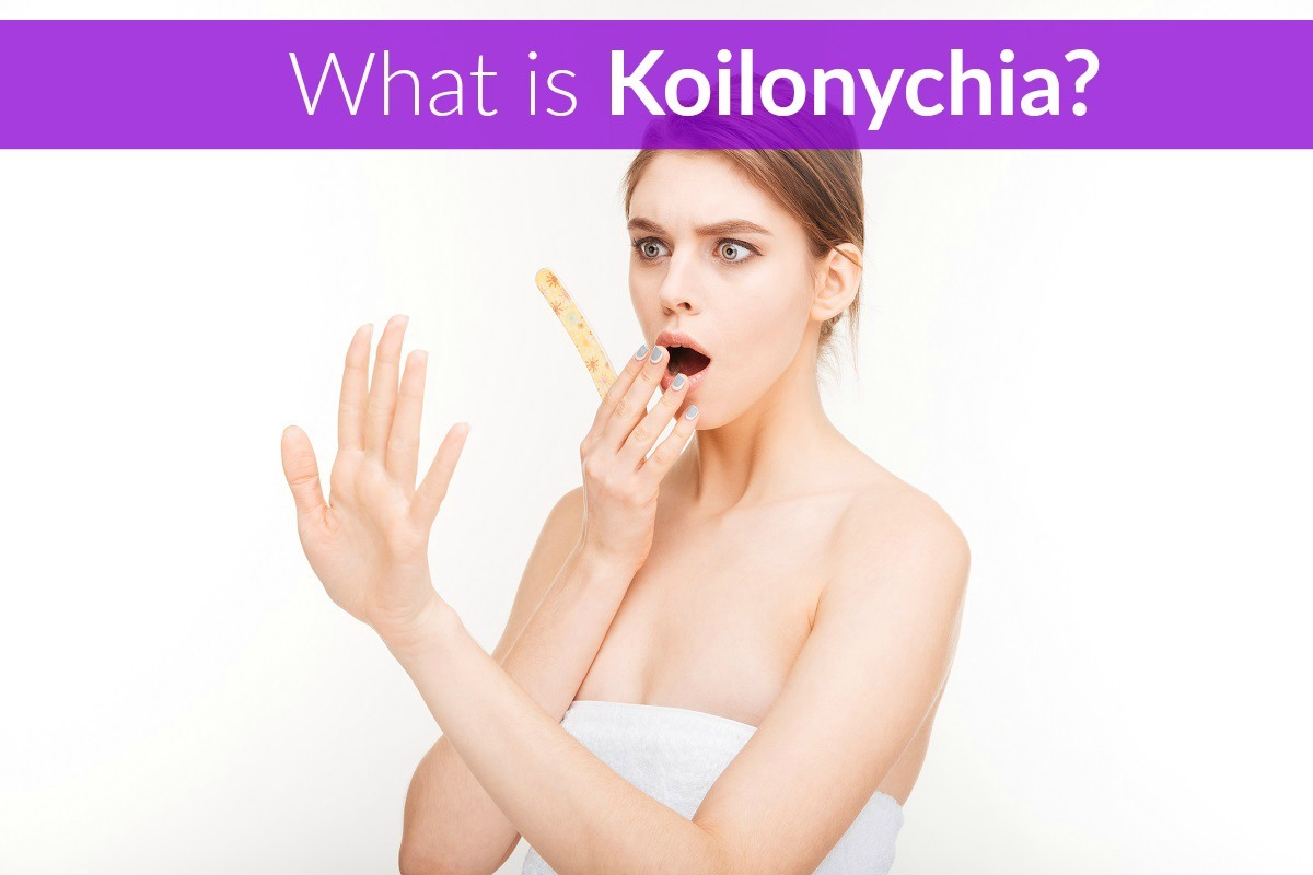 What is Koilonychia