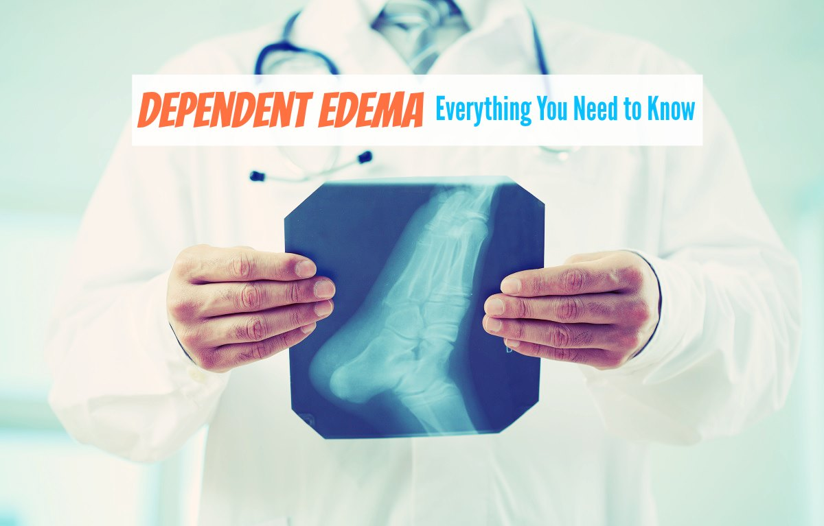 Dependent Edema - Everything You Need to Know