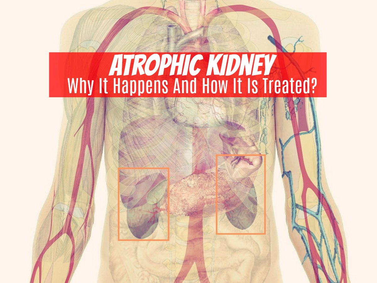 Atrophic Kidney - Why It Happens And How It Is Treated