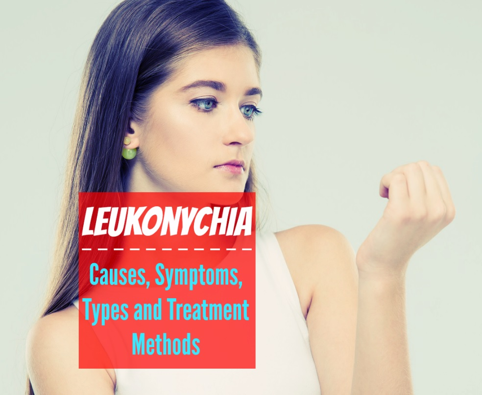 Leukonychia - Causes Symptoms Types and Treatment Methods