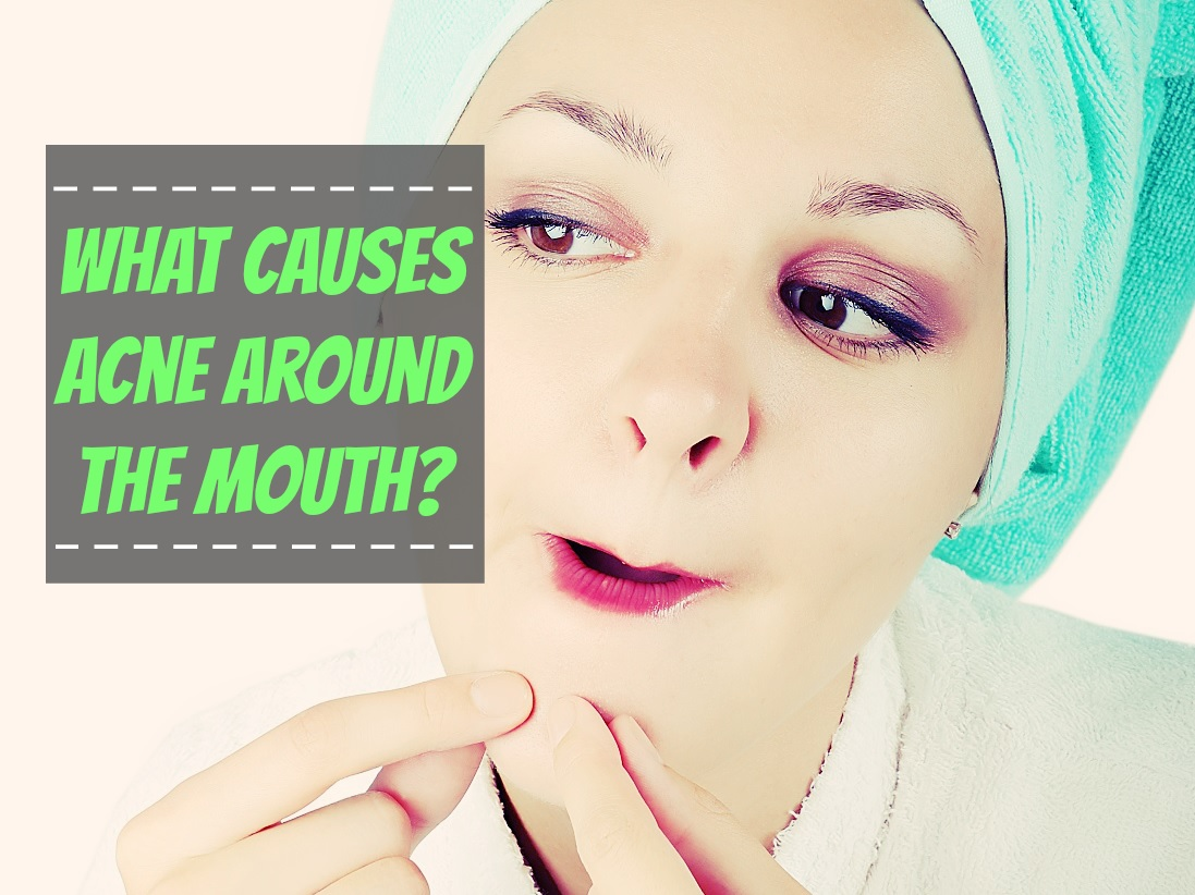 Causes Acne Around The Mouth